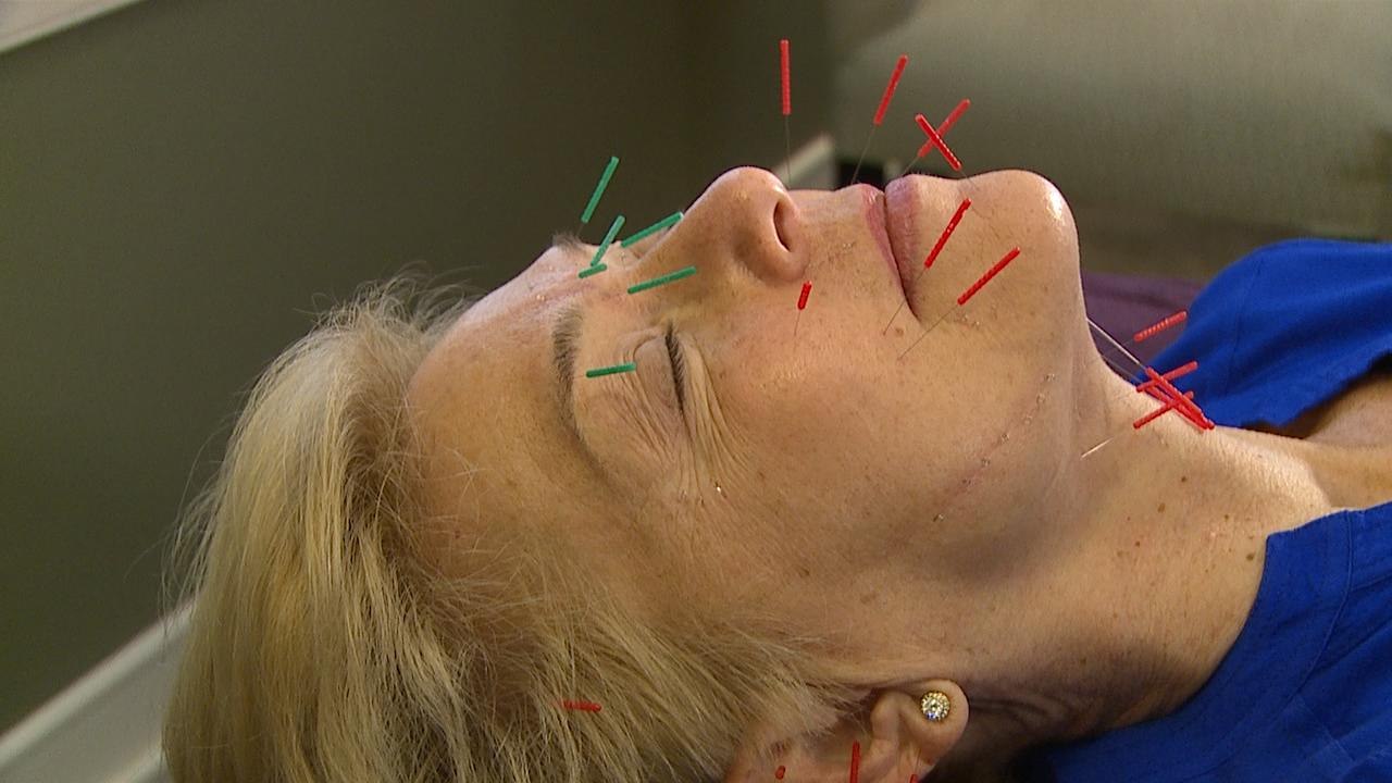 facial-acupuncture-web_377286