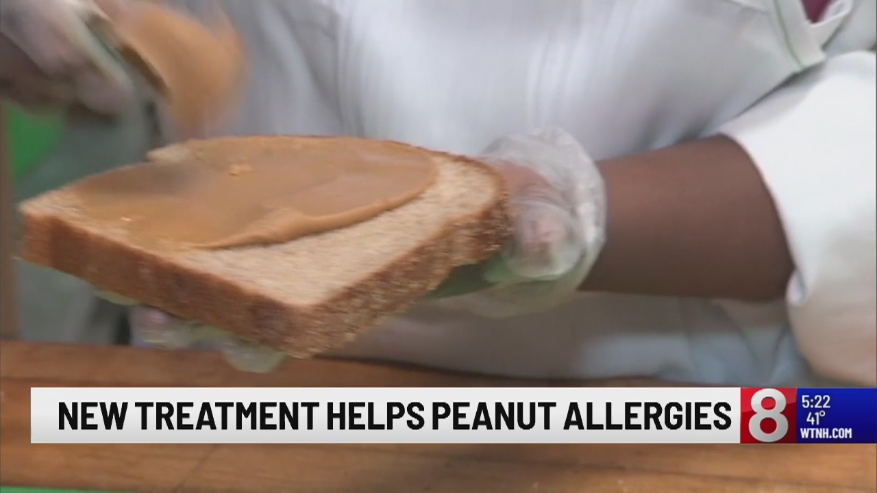 New treatment helps peanut allergies