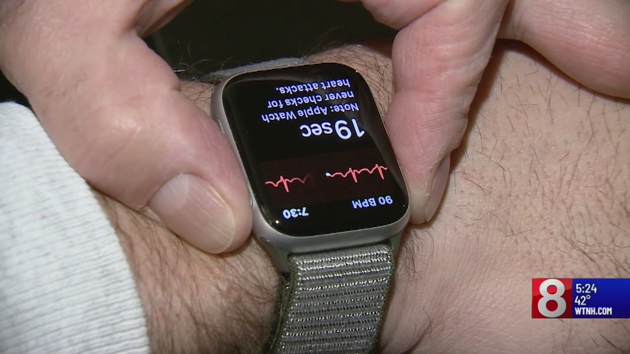 Apple Watch helps New Hampshire man with heart problem