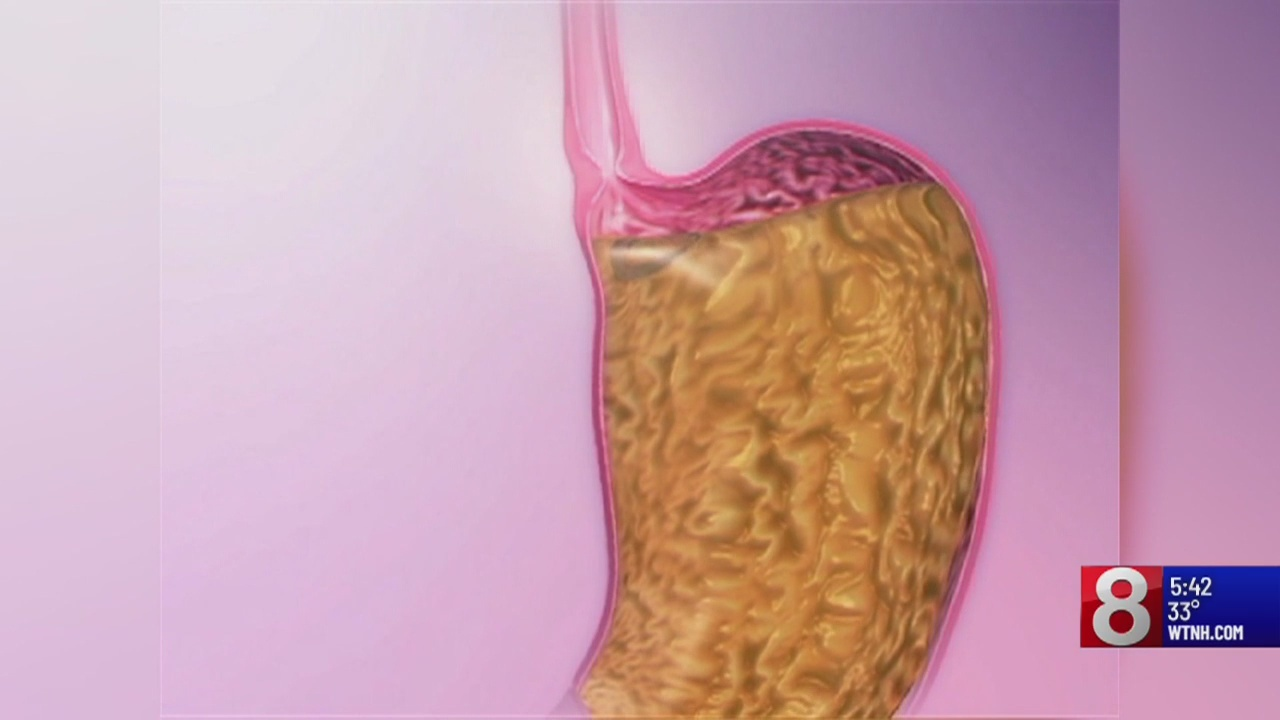 Tips for dealing with acid reflux