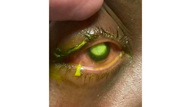 2019-05-03 nexstar eye contacts dye health_1556923198639.jpg.jpg