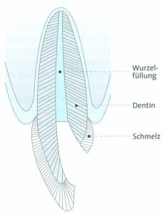 Wurzelfüllung bei Zahnwurzelentzündung