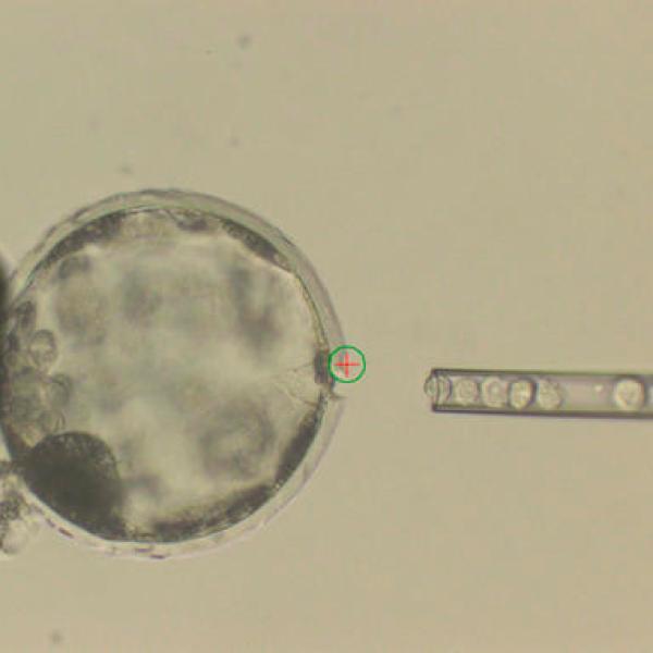 Pig Human Embryos_538374