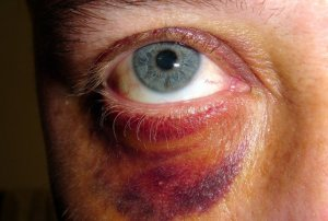 Man with a black eye