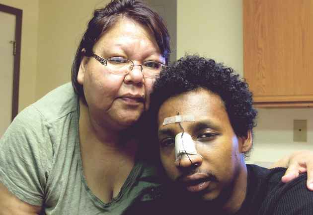 """Kay Davis and her son, Darryn Davis at their home in Riverton. Davis underwent reconstructive facial surgery after being punched by his childhood friend, James """"Skip"""" Crooks. Crooks is charged with aggravated assault, a felony."""