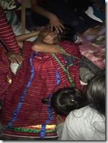 Mujer triqui lesionada