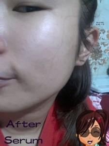 blog-after-serum