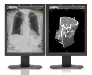 X Med View console de diagnostic X medical Picture
