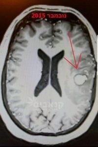 גידול סרטני במוח