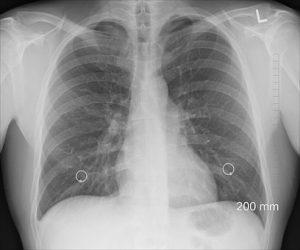 заболевания легких катринка