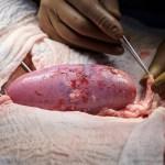 Trasplantan con éxito un riñón de cerdo a una mujer en muerte cerebral