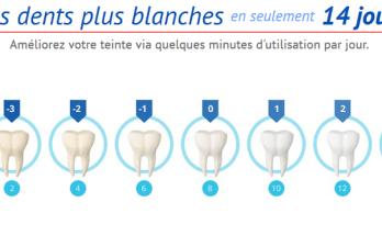 Le blanchiment des dents: Allez chez le dentiste vs. DIY(fais le par toi-même)