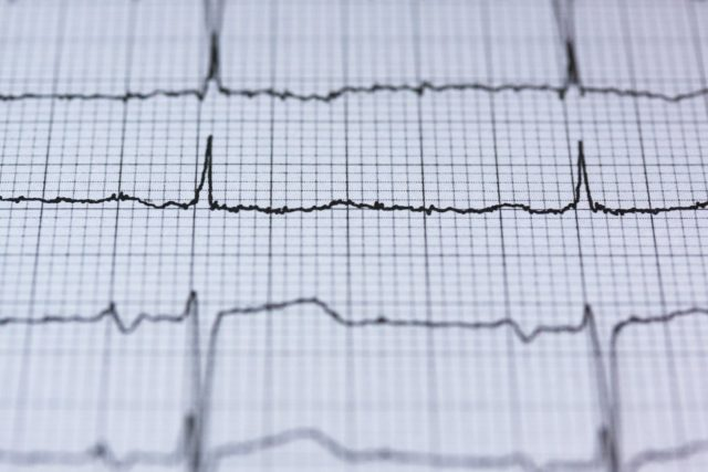 Cardio vasculaire
