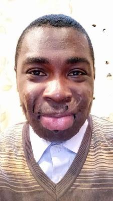 nigerian burn survivor shares inspiring story