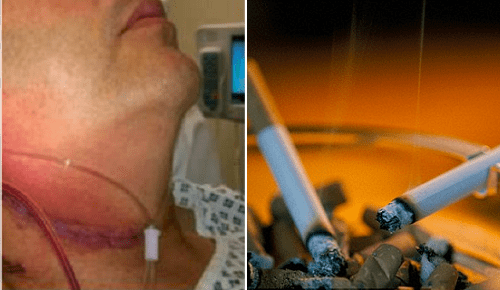 Throat Cancer Patient Kills Colleague Who Introduced Him To Smoking