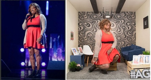 burn survivor kechi okwuchi