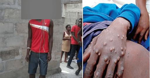 Monkeypox victim commits suicide