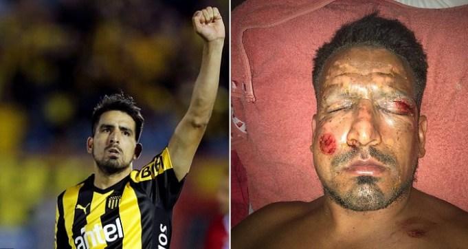 Former Argentine Footballer Lucas Viatri Severely Wounded