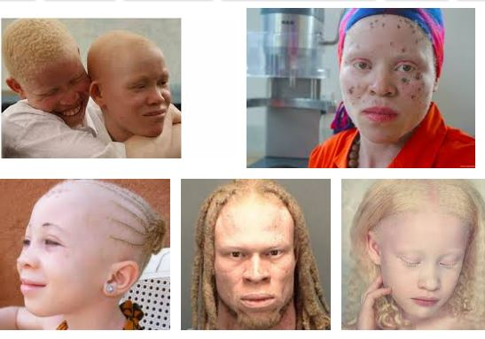 Albinos in Niger Delta get N4.3bn support from European Union
