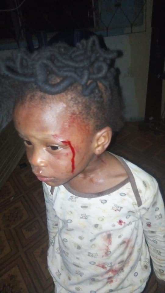 2-year-old girl brutalized
