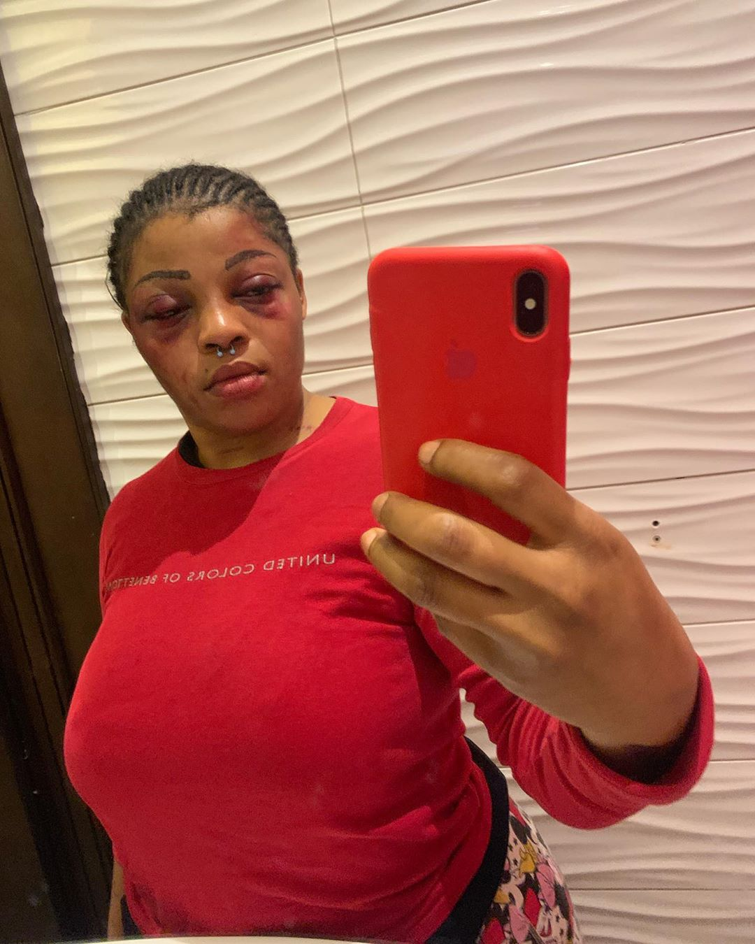 Nigerian lady reveals why she was badly beaten up by her boyfriend