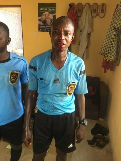 Wahala!! Angry football fans mercilessly beat up match officials with center referee losing some of his teeth in Ghana (Photos)