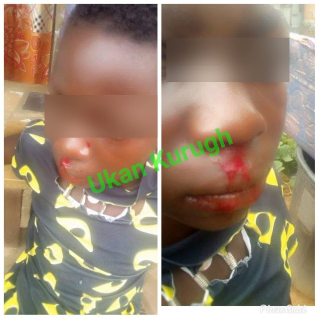 Girl allegedly battered by her stepsister in Benue state (Graphic photos)