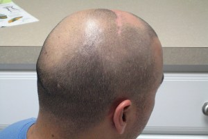 Benefits of using olive oil for hair growth