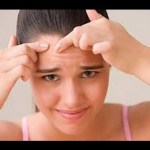 7 Best home remedies to treat forehead acne