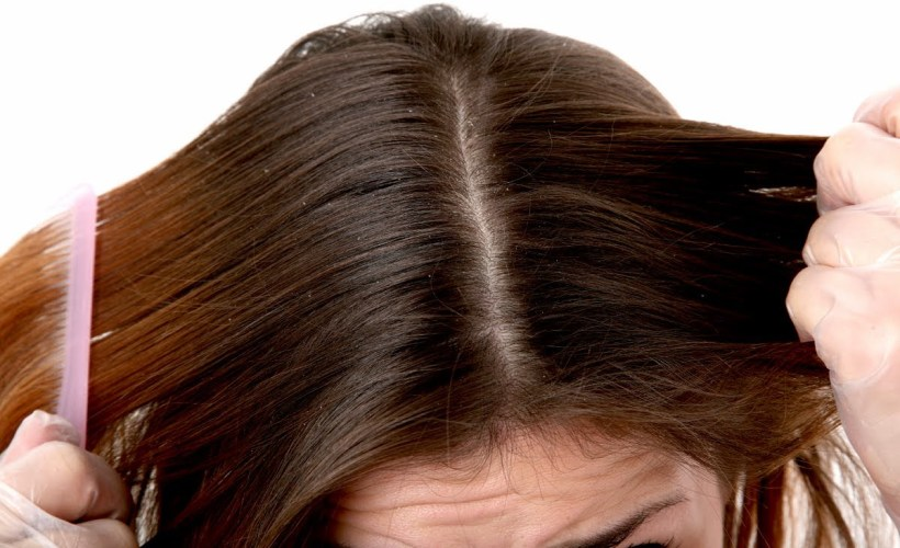 dandruff, skin, how to get rid of dandruff fast, how to get rid of dandruff permanently, what causes dandruff, how to get rid of dandruff in one wash, how to get rid of dandruff overnight, how to get rid of dandruff home remedies, how to get rid of dry scalp, how to get rid of dandruff and hair fall,