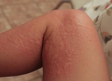 5 Home Remedies for Getting Rid of Hives