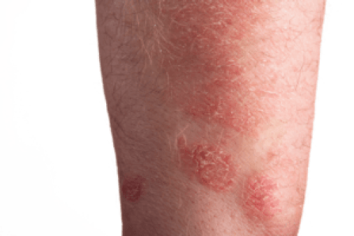 different types of skin diseases