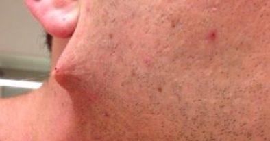 Methods To Cure Ingrown Hair