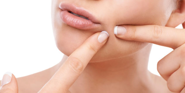 Things You Should Know Before You Pop a Pimple