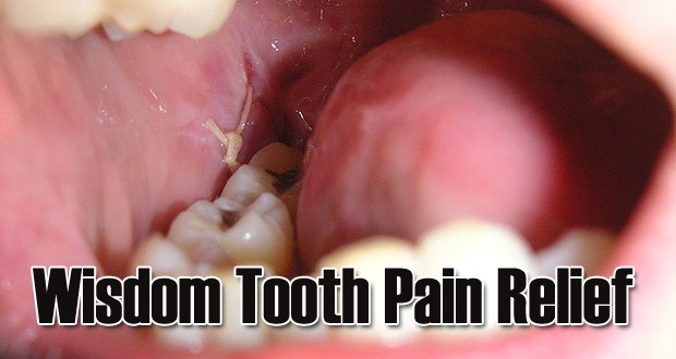 Home Remedies To Get Wisdom Teeth Pain Relief