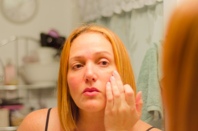 Home Remedies To Reduce Redness on Your Face