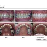 ヤマダ矯正歯科 矯正歯科治療 舌側矯正治療例