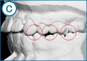 ヤマダ矯正歯科 理想の歯並びの写真