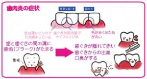 歯の喪失を防ぐ為に ヤマダ矯正歯科