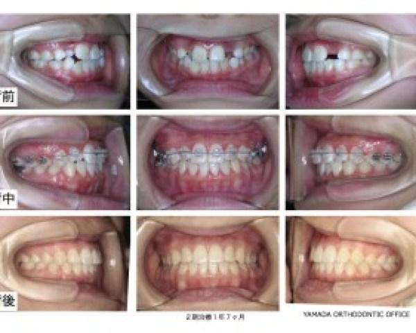 ヤマダ矯正歯科 叢生症例
