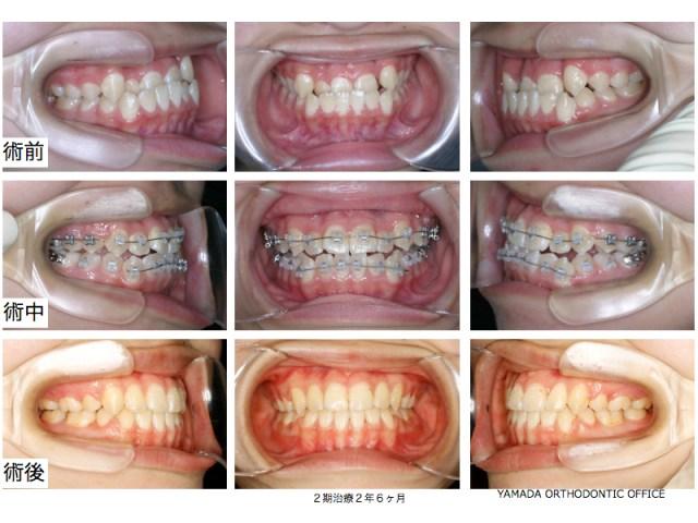 ヤマダ矯正歯科 下顎前突 叢生 矯正治療 症例