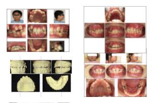 小児における咬合誘導と強制治療ベーシックコース ヤマダ矯正歯科