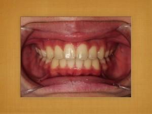 ヤマダ矯正歯科 患者さんのコメント