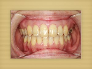 矯正装置撤去後の口腔内写真