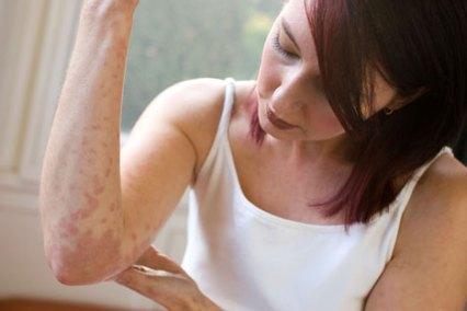 best-treatment-for-eczema