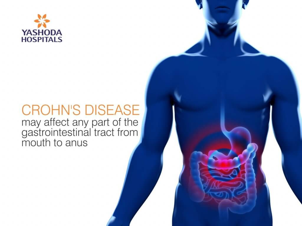 Chrohns Disease Symptoms Causes Diagnosis And Treatment