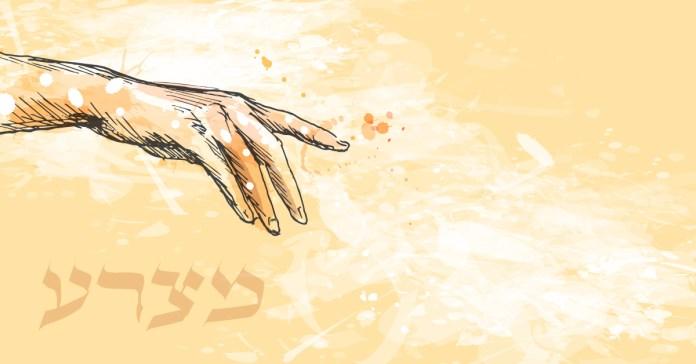 צרעת ומצורעים בימי המקרא