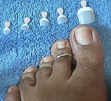 Fake Toenails To Cover Fungus
