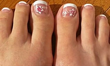 Nail Clinic Onycholysis What It Looks Like Causes And Treatment