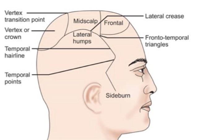 glosario trasplante capilar